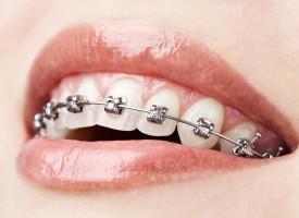 Orthodontie : choix des appareils