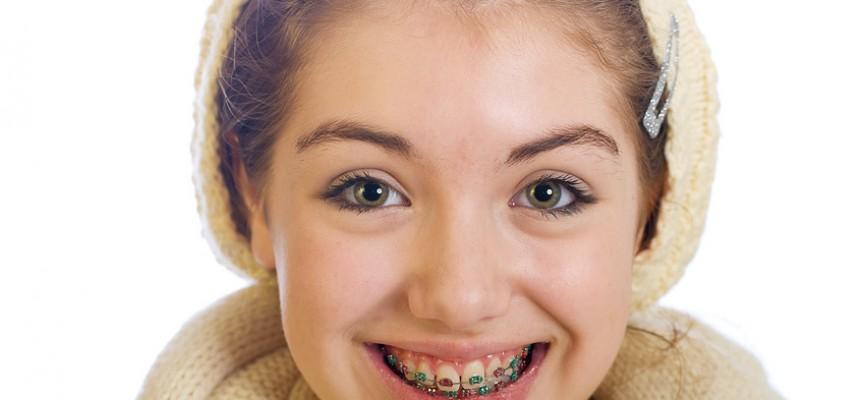 Combien de temps dure un traitement d'orthodontie ?