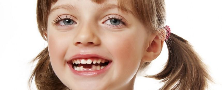 Quel est l'âge optimal pour commencer un traitement d'orthodontie ?