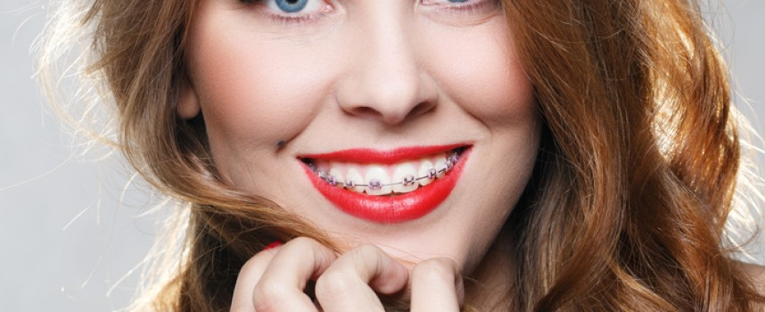 Orthodontie de l'adulte