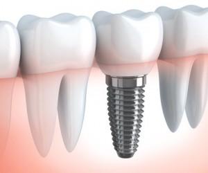 Qu'est-ce qu'un implant dentaire ?