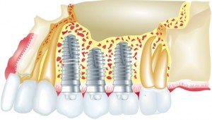 Implants dentaires