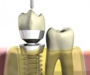 Les différents éléments d'une restauration implantaire unitaire