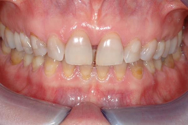 Fig. 1 : colorations à la tétracycline réfractaires à un éclaircissement