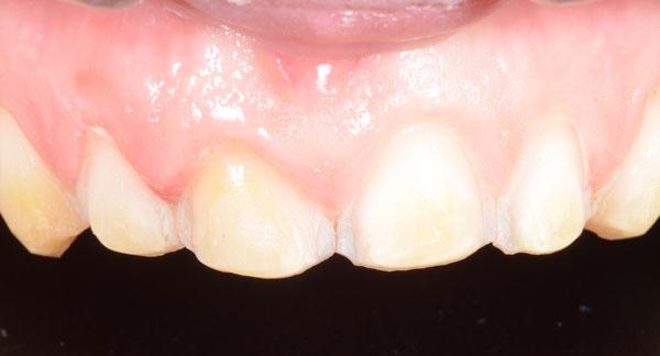 Fig. 10 : l'émail des dents à recouvrir est préparé à minima à l'aide de fraises diamantées