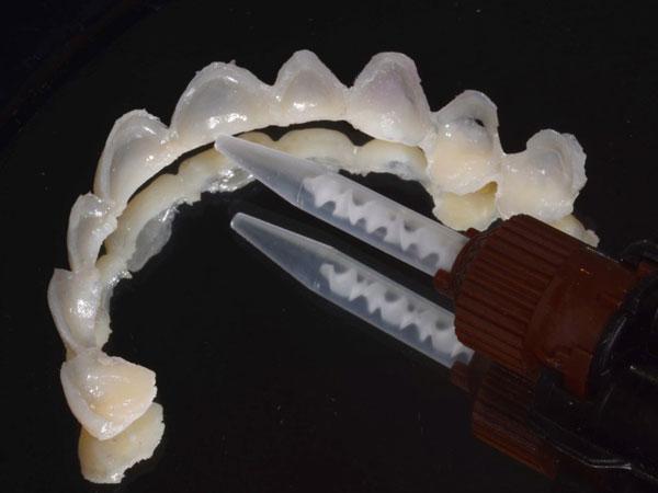 facettes dentaires provisoires