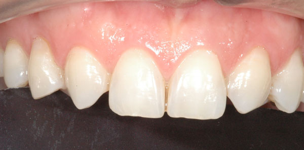Fig. 4 : dents trop pointues (canines mises orthodontiquement en position d'incisives latérales)