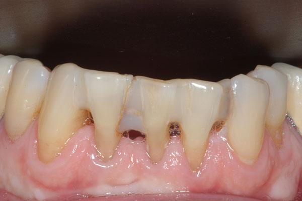 Fig. 6 : espaces noirs disgracieux entre les dents