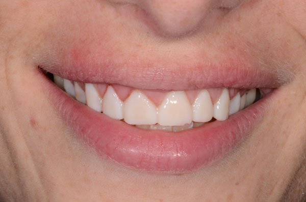 facettes provisoires collées en bouche