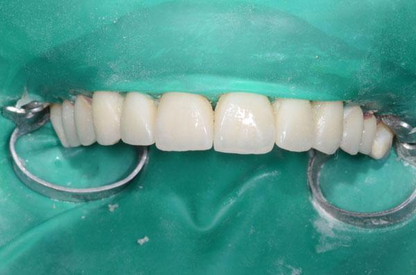 les dents sont isolées sous une feuille de latex (digue) et les facettes en céramique sont collées