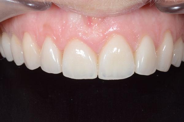 les facettes en céramique collées sur les dents