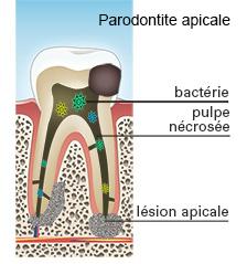 parodontite-apicale