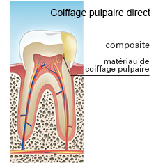 coiffage pulpaire direct