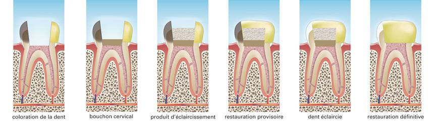 Eclaircissement de la dent dépulpée