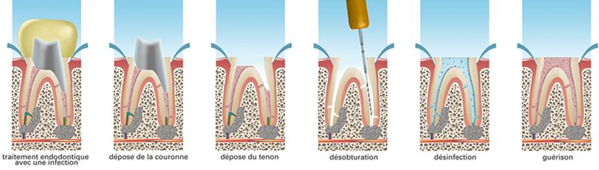 retraitement-endodontique