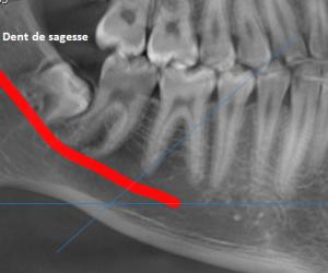 Perte de sensibilité suite à une extraction de dents de sagesse