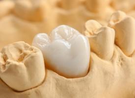 Couronnes dentaires sur dents très abîmées
