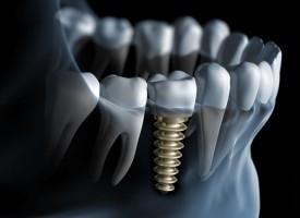 Je dois prochainement me faire poser un implant sur une des dents de devant. Cela va-t-il se voir ? Est-ce un traitement esthétique ?