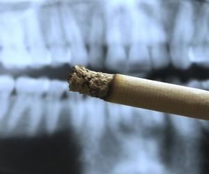 Pourquoi est-il impératif d'arrêter le tabac avant d'entreprendre un traitement parodontal ?